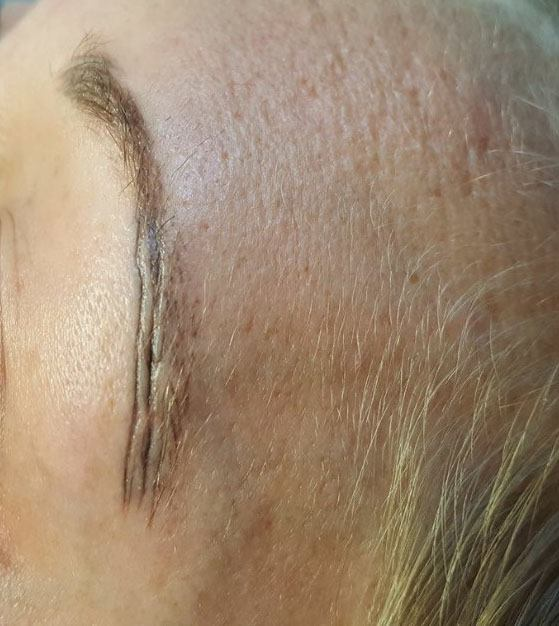Microblading-What you should know